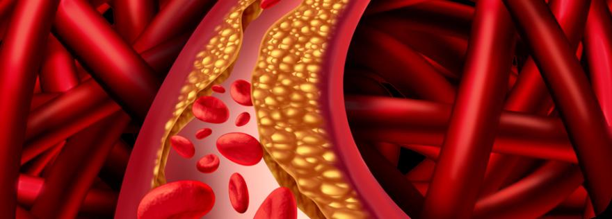 Die Cholesterinlüge – wieder ein Betrug der Pharmaindustrie?